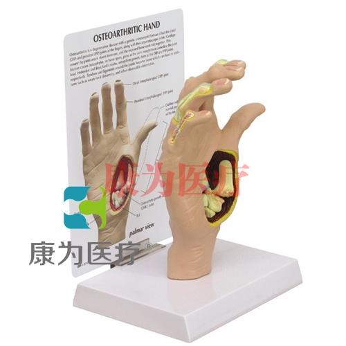 """""""康为医疗""""医患关系沟通模型-手解剖模型 (医学指导模型)"""
