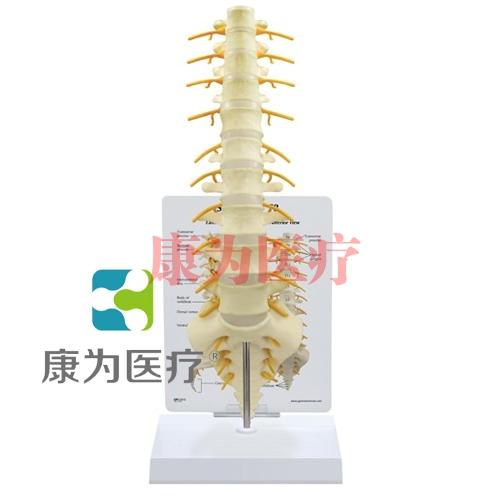 """""""康为医疗""""医患关系沟通模型-骶骨带脊髓和脊神经模型 (医学指导模型)"""