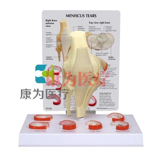 """""""康为医疗""""医患关系沟通模型-膝关节半月板撕裂模型 (医学指导模型)"""