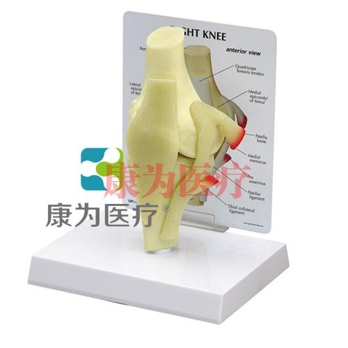 """""""康为医疗""""医患关系沟通模型-正常膝关节模型 (医学指导模型)"""
