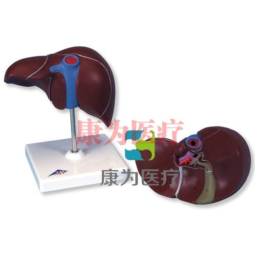 带胆囊肝模型