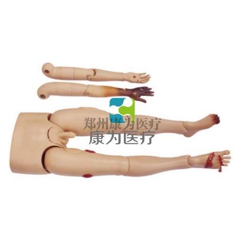 """""""康为医疗""""可更换的创伤四肢"""